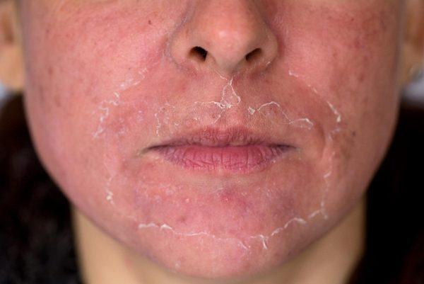 Нижняя часть лица женщины с шелушащейся кожей