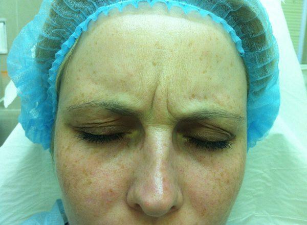 Лицо сразу после уколов ботокса