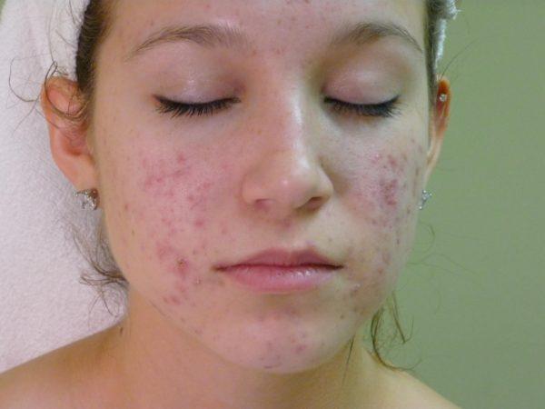 Жирная проблемная кожа