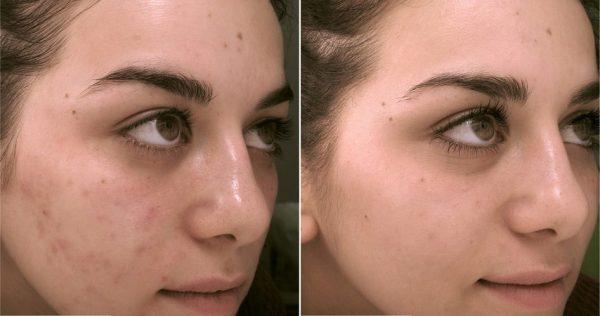 До и после курса масок с аспирином