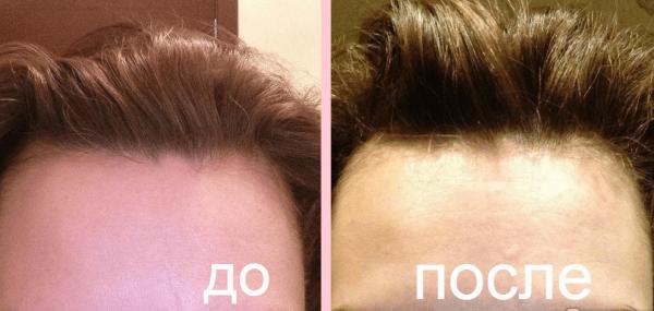 Причёска до и после пилинга
