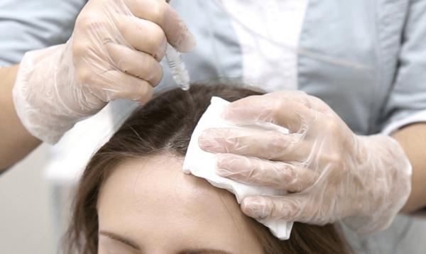Газожидкостный пилинг кожи головы