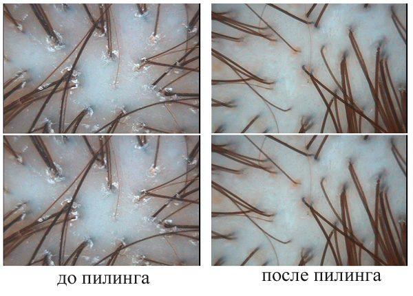Волосы до и после пилинга