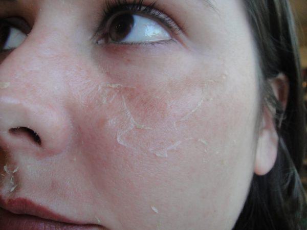 Сухая кожи лица