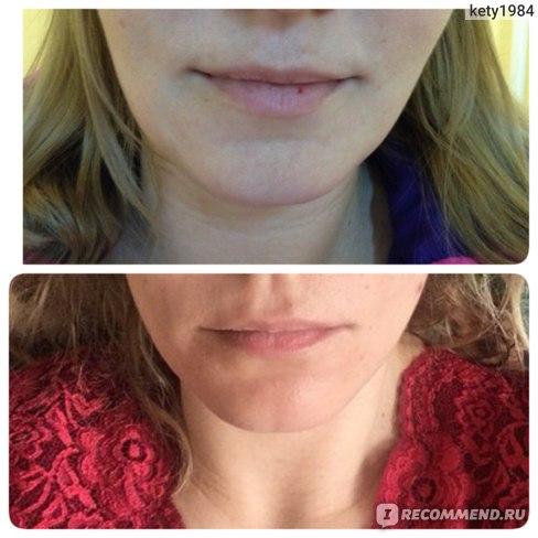 Фото овала лица до и после классического массажа