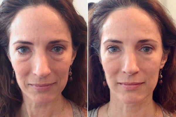 Фото лица до и после массажа