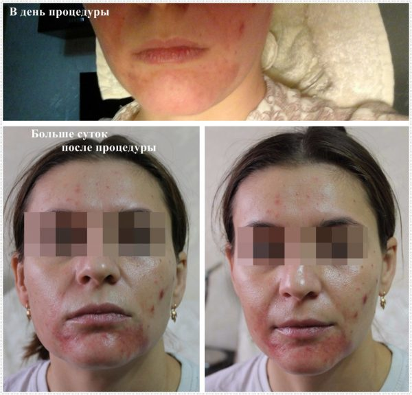 Раздражение на лице после процедуры плазмолифтинга