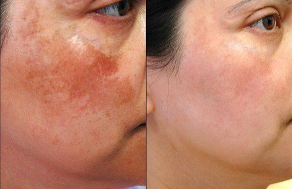 Результат применения крема против пигментных пятен