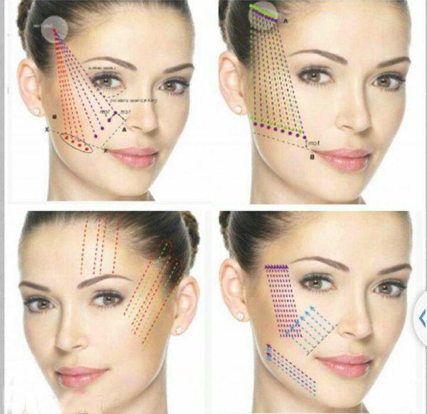 Варианты армирования нитей на лице
