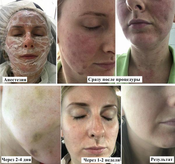 Процесс восстановления после плазмолифтинга