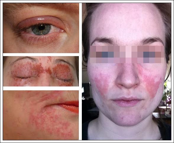Примеры аллергических симптомов