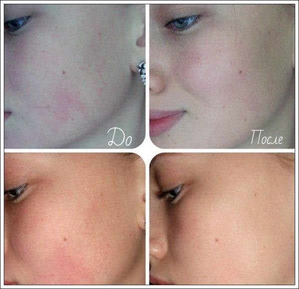 До и после нанесения медовой маски