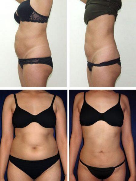 Борьба с жировыми отложениями на животе