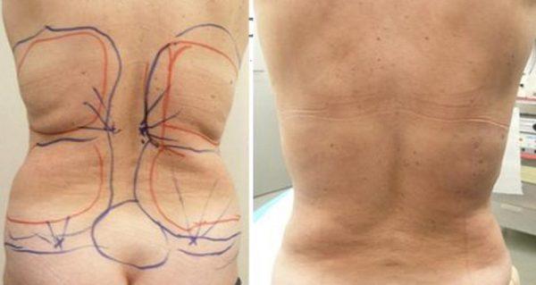 До и после торсопластики