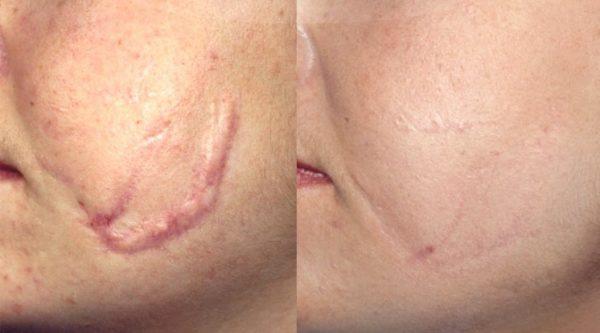 До и после операции по реконструкции