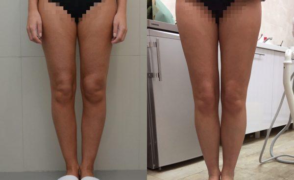 До и после круропластики