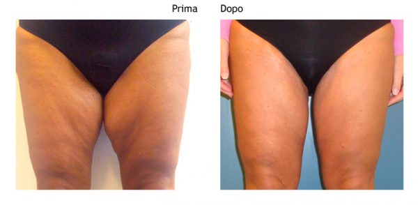 До и после феморопластики