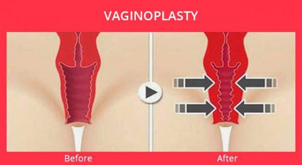 До и после вагинопластики