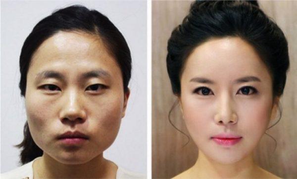 До и после пластической операции