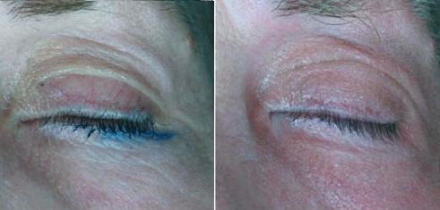 Область вокруг глаза до и после воздействия лазером