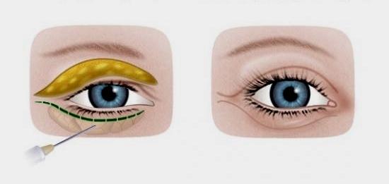 Глаз до и после инъекционной блефаропластики