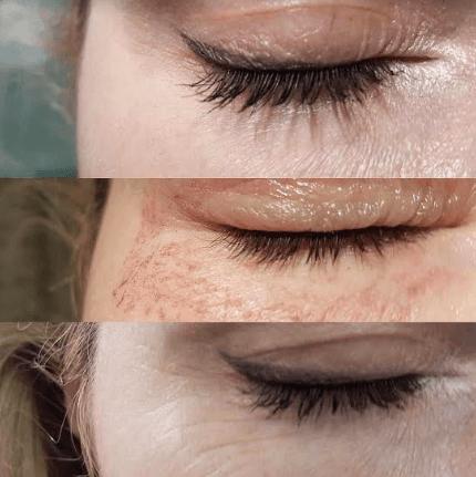 Глаз до, сразу после и через некоторое время после проведения безоперационной блефаропластики