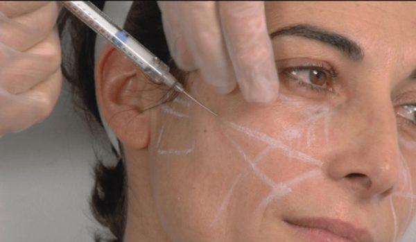 Инъекции жидких нитей