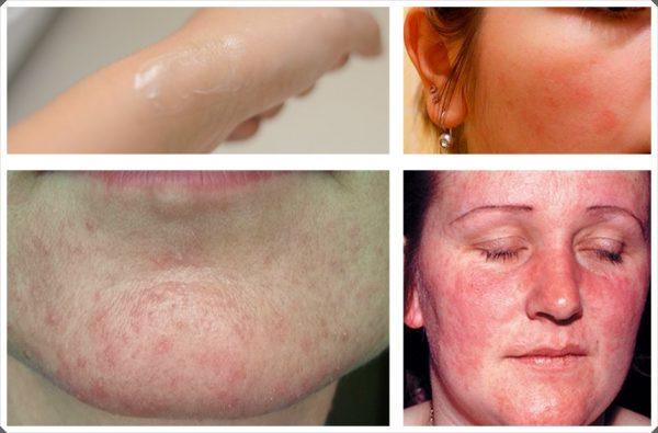 Аллерготест и примеры аллергических реакций на лице