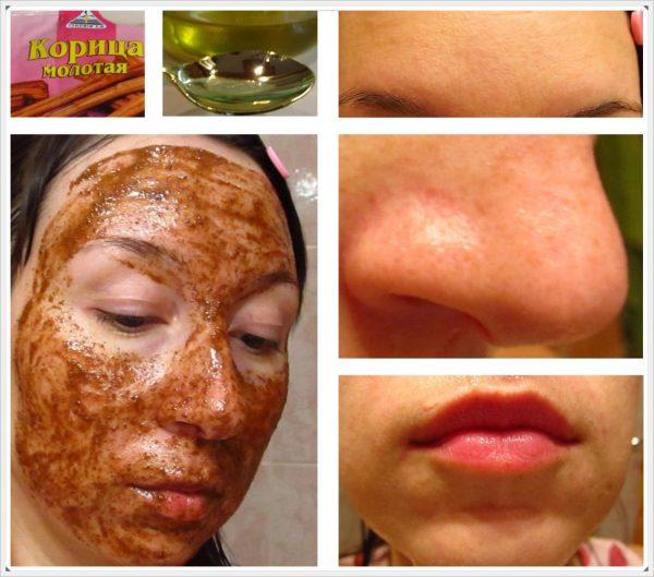 Эффект после маски из корицы и мёда