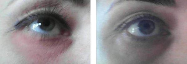 Состояние кожи До и После применения Радевита