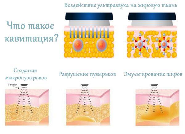 Схематичное изображение процедуры ультразвуковой кавитации