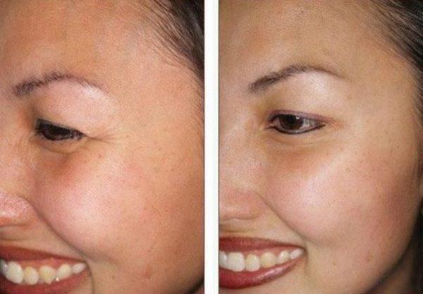 До и после курсового применения крема с эффектом Ботокса
