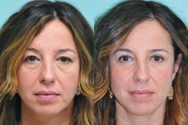До и после блефаропластика