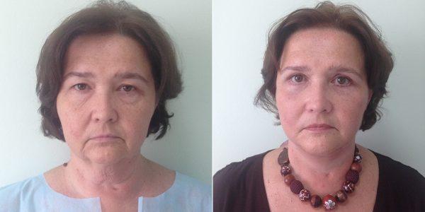 Результат короткорубцовой подтяжки лица