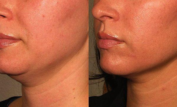 Лицо до и после лазерной подтяжки