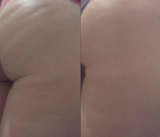 Фото бедра девушки до и после обёртывания