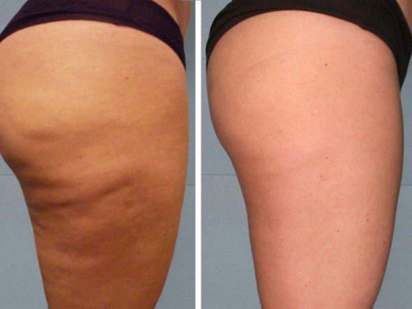 Фото бедра девушки до и после антицеллюлитного массажа