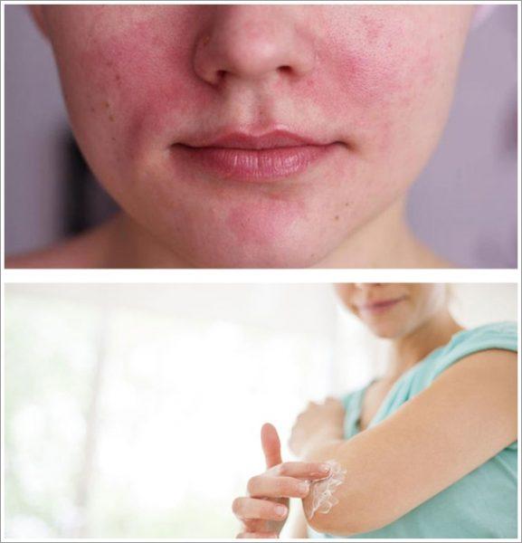 Раздражение кожи лица, тест на аллергическую реакцию