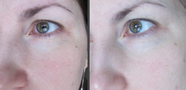 Состояние кожи вокруг глаз