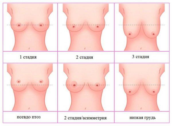 Стадии мастоптоза — отвисание груди