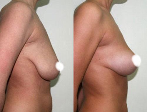 Фото до и после процедуры нитевого лифтинга груди
