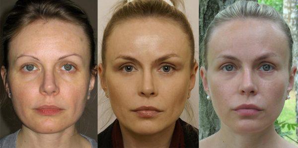 Результат эндоскопической подтяжки лица