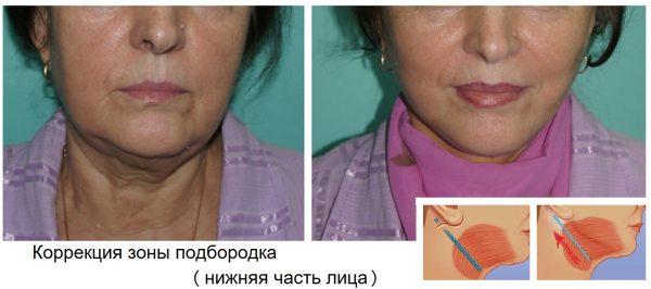 Эндоскопическая подтяжка нижней трети лица